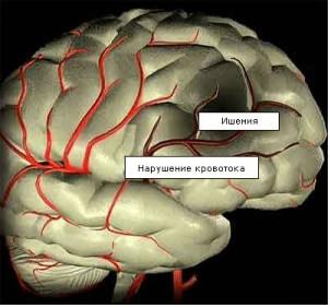 ишемия головного мозга у новорожденных детей