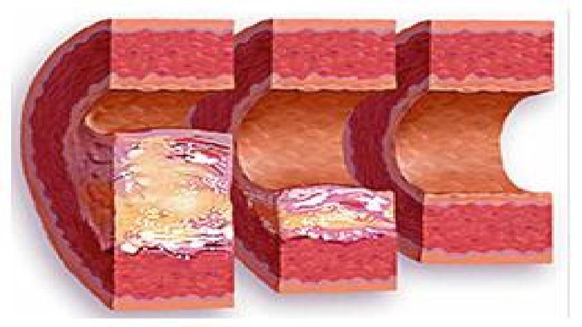 Атеросклероз сосудов головного мозга меню