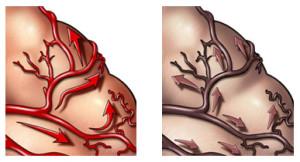 Нарушение мозгового кровообращения при сосудистой деменции