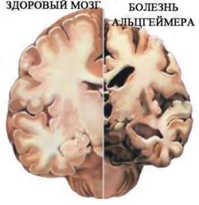 Сравнение мозга здорового человека и пациента с заболеванием Альцгеймера