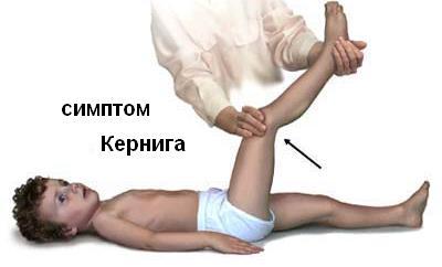 Менингит при беременности