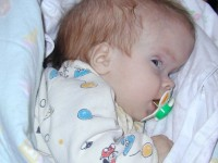 Фото гидроцефалии у ребенка
