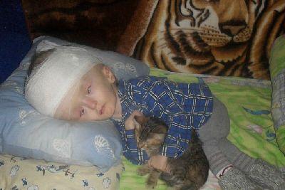 гидроцефалия головного мозга у ребенка