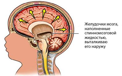 гидроцефалия мозга