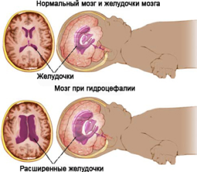 водянка головного мозга