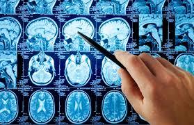 томография головного мозга
