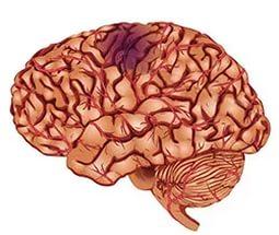 признаки сосудистой энцефалопатии