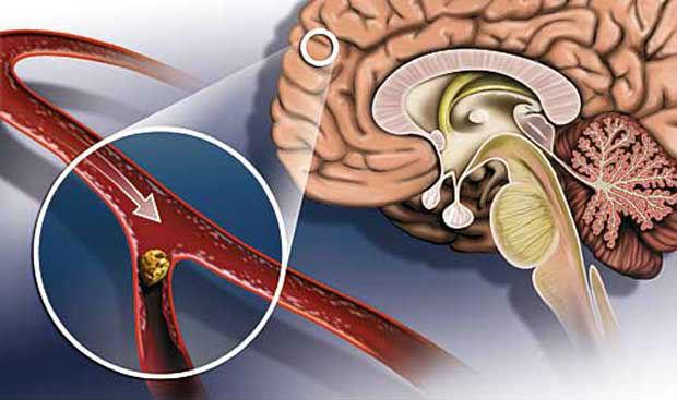 Клиника тромботического инсульта