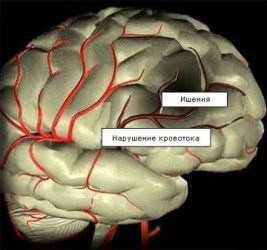 Дисциркуляторная сосудистая энцефалопатия