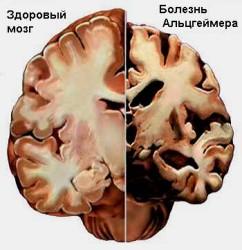 Как проявляется синдром Альцгеймера