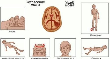Поздние признаки сотрясения мозга