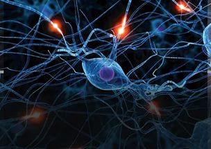 Признаки деменции при эпилепсии