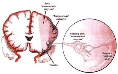 Почему возникает ишемия