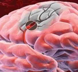 Неврологические симптомы ишемического инсульта