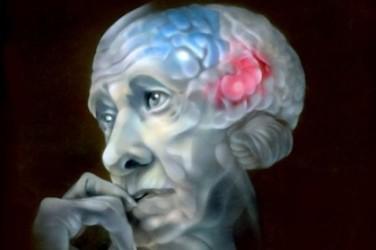 Причины возникновения деменции