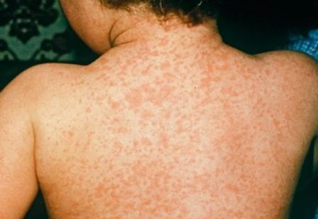 Причины вирусного менингита