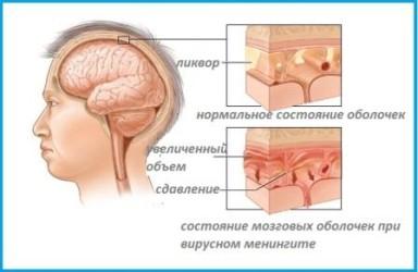 Инфекционный менингит
