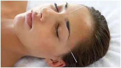 Акупунктурные точки при головных болях