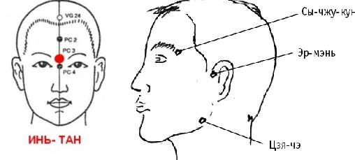 Точки для массажа при головных болях