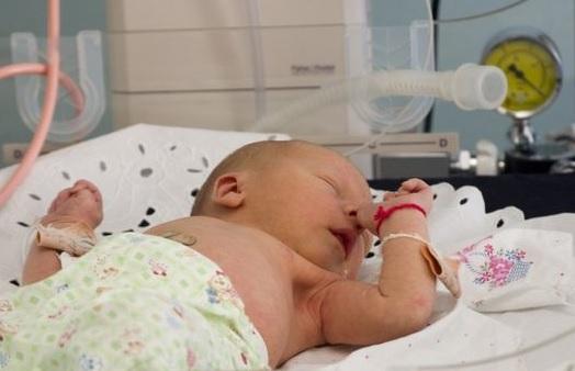 Лечение кровоизлияния в мозг у новорожденных