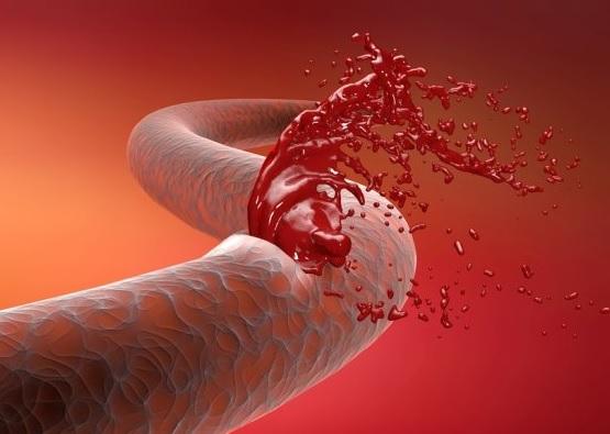 Обширное кровоизлияние в мозг
