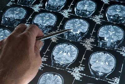 Симптомы невриномы