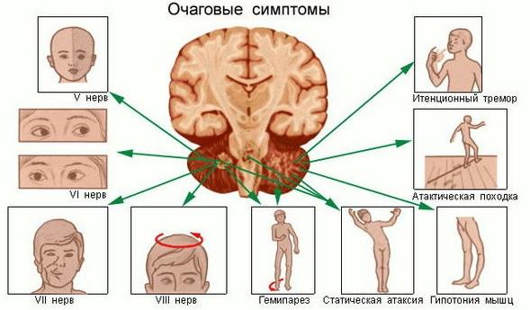Причины опухоли в голове
