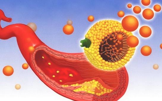 Понизить уровень холестерина в крови