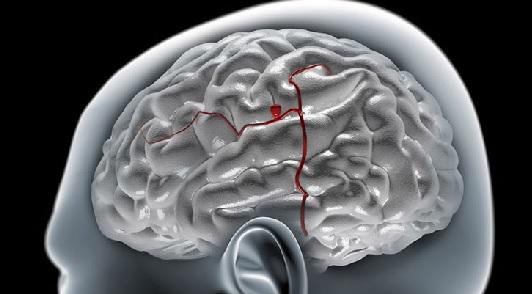 Операция аневризмы сосудов головного мозга