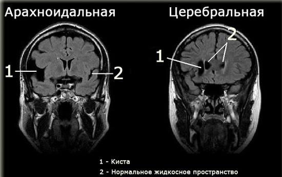 Киста в голове лечение у взрослых