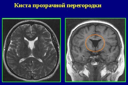 Киста прозрачной перегородки головного мозга