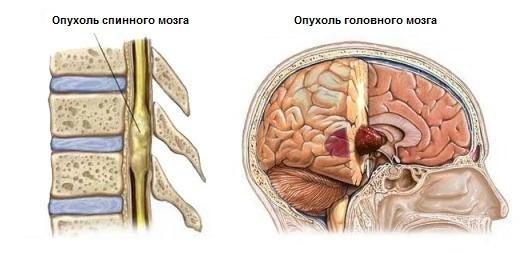 Симптомы рака спинного мозга