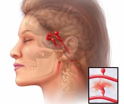 Разрыв аневризмы головного мозга