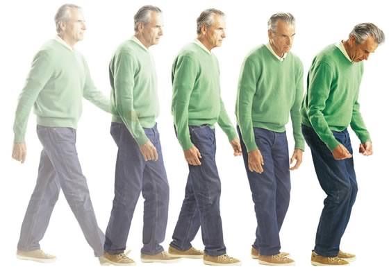 Первые симптомы болезни Паркинсона