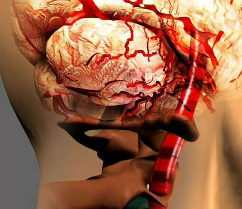 Причины синдрома позвоночной артерии