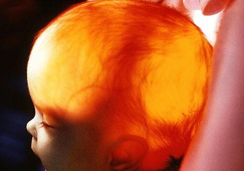 Увеличение желудочков головного мозга у плода