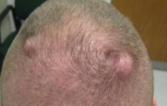 Жировик на голове