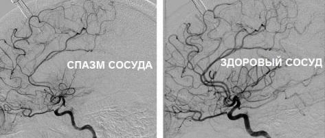 Ангиодистония церебральных сосудов