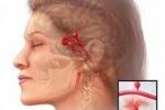 Причины кровоизлияния