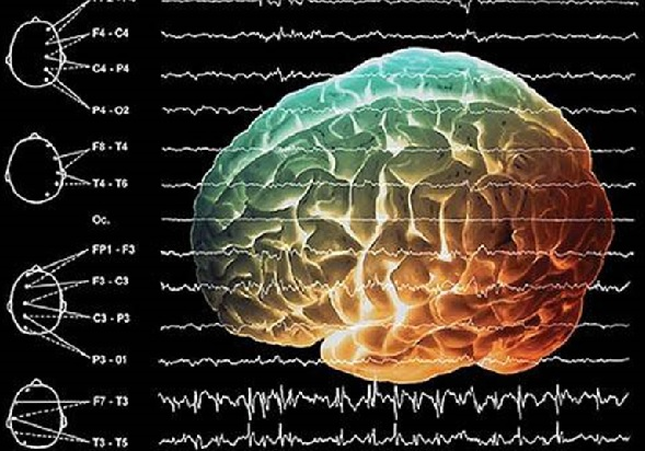 Умеренно выраженные диффузные изменения биоэлектрической активности мозга