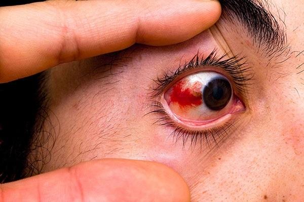 Красные пятна на глазном яблоке