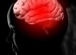 Кровоизлияние в мозг