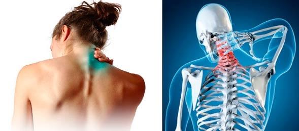 Тошнота и слабость при шейном остеохондрозе