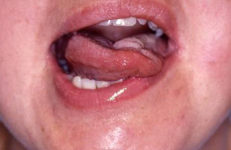 Бульбарные симптомы