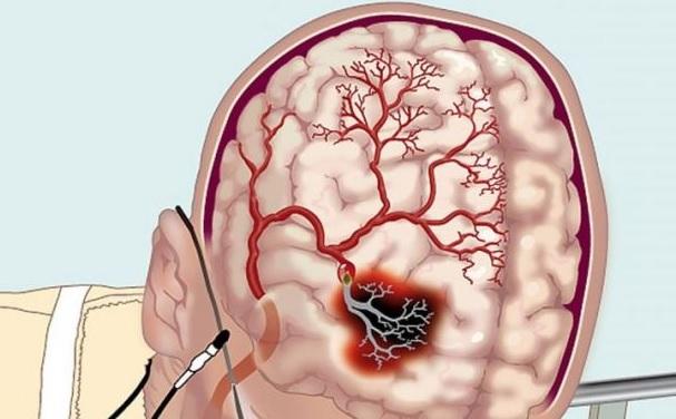 Восстановление мозгового кровообращения