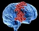 Рак мозга 4 степни