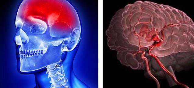 Неврологические симптомы при кровоизлиянии