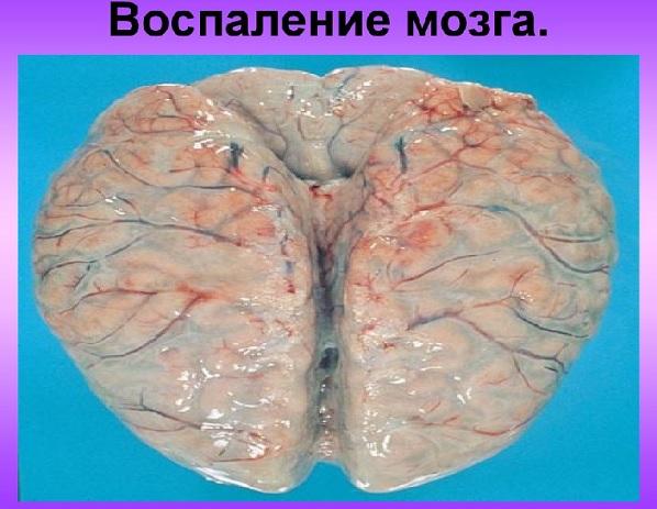 Воспаление коры и оболочек головного мозга