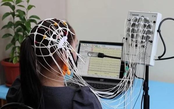 Ирритация диэнцефальных структур головного мозга