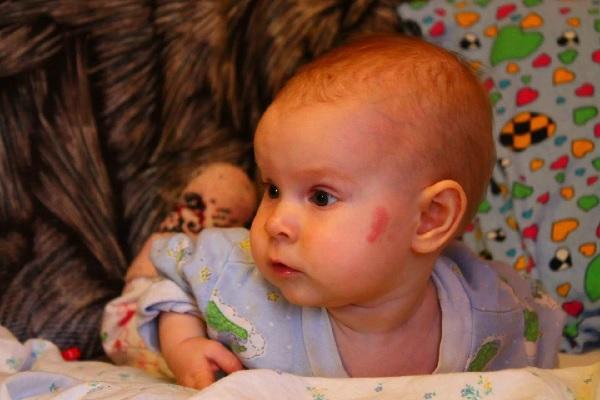 Выпуклый лоб у ребенка